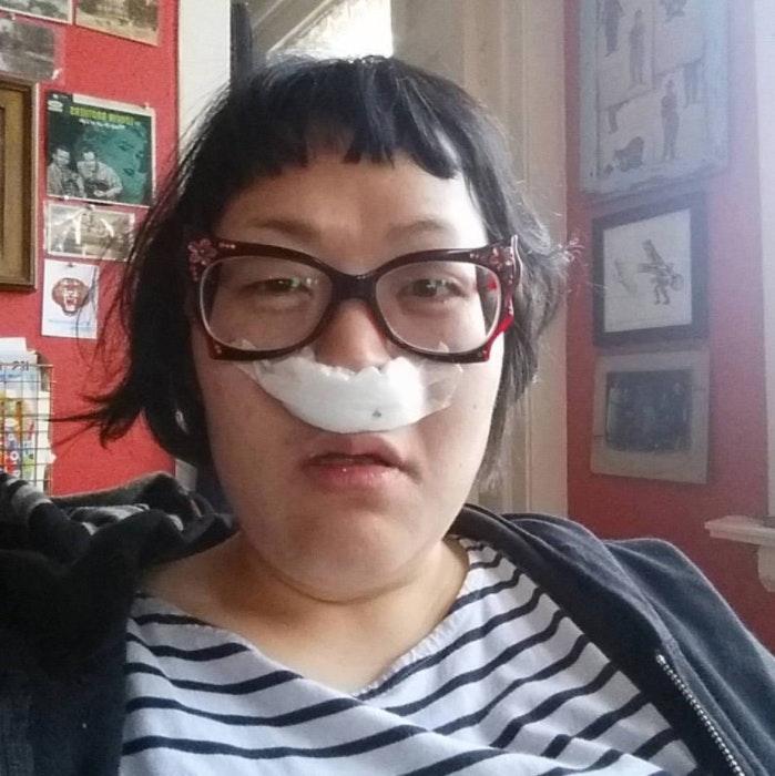 Laura Park Post Surgery